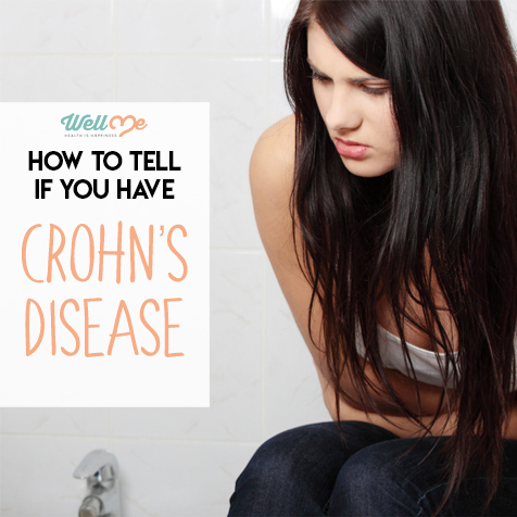 How to Tell if You Have Crohn's Disease