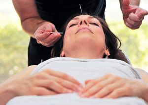 woman lying down receiving acupuncture to the face