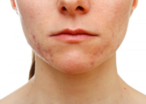 bottom half of a woman's face showing acne on her jaw area