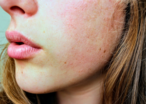 close up of a woman's cheek with dehydrated and unhealthy looking skin