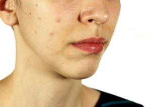 bottom half of a woman's face showing her dull and spotty skin