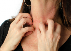 woman scratching a red rash on her neck
