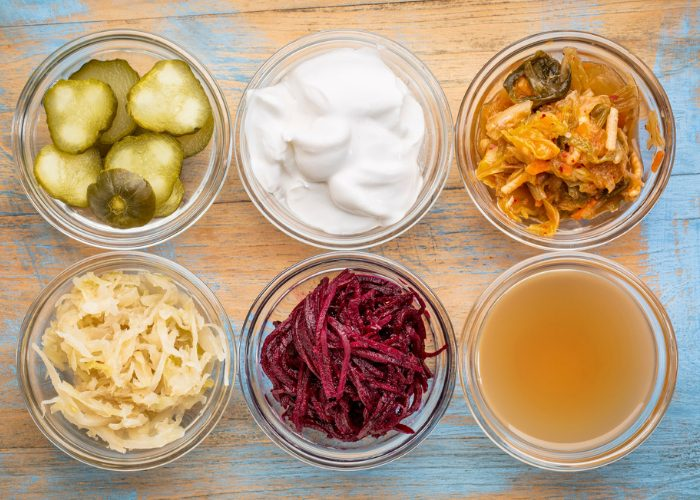fermented foods like pickles, kimchi, sauerkraut, and yogurt in small clear dishes