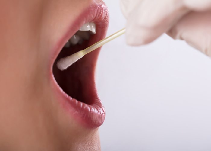woman with her mouth wide open and a doctor taking a saliva swab for a food intolerance test