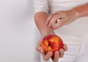 woman with a food intolerance to fruit itching her skin due to a reaction eating a peach