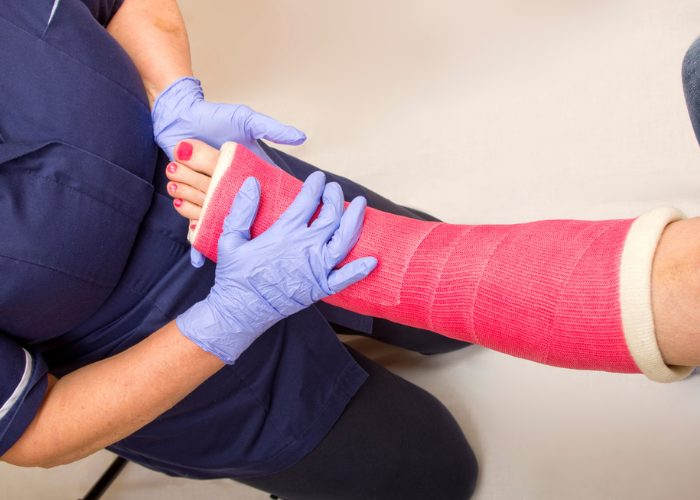 a nurse holding up a woman's leg in a red cast