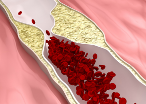Diagram of clogged arteries resulting in artherosclerosis