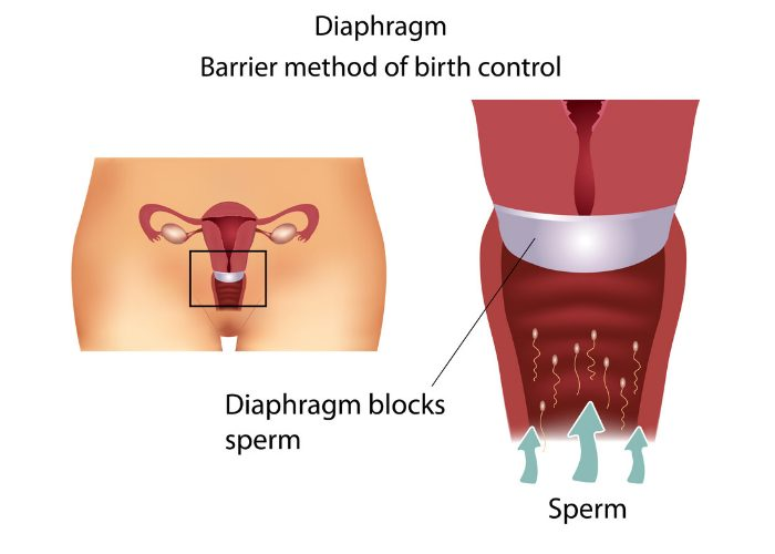 Diagram showing how a diaphragm or barrier method of birth control works