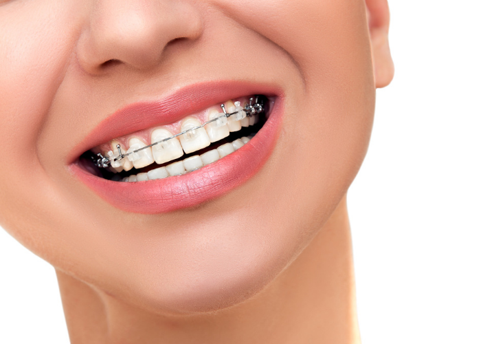 Close up of woman's mouth smiling with ceramic braces showing