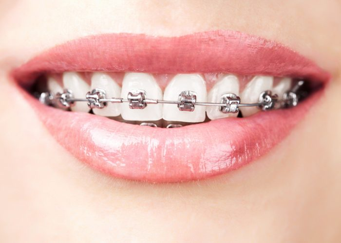 Close up on an adult woman's mouth smiling with metal bracket braces