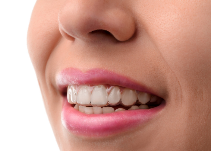 Close up of woman's mouth with invisible Invisalign adult braces