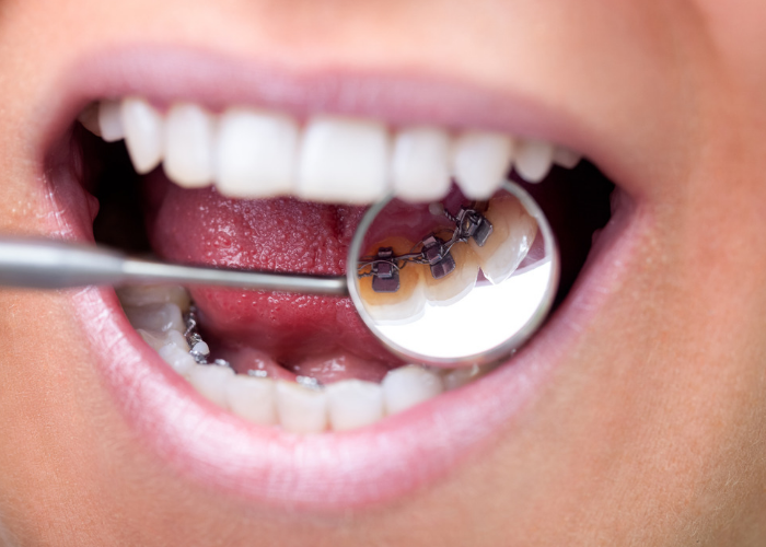 Close up of a woman's mouth with lingual braces attached to her teeth