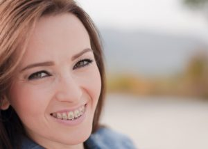 Woman with adult braces smiling