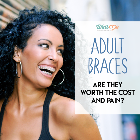 Adult Braces: Are They Worth the Cost and Pain