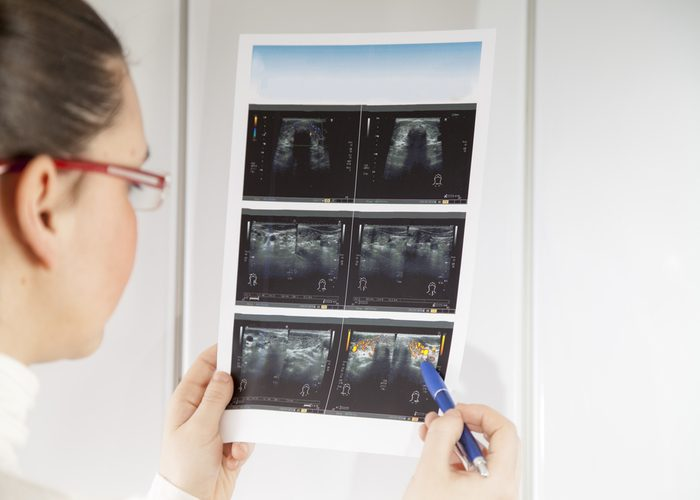 Doctor checking a print out of x-rays of a patient's thyroid