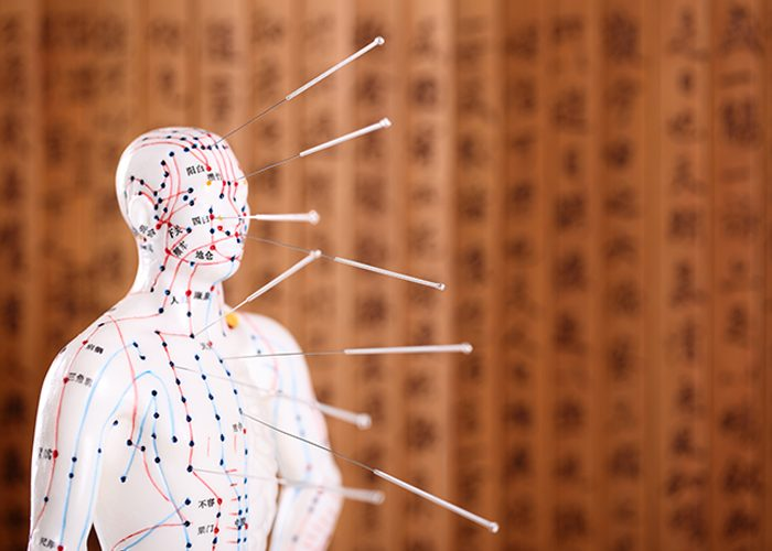 Acupuncture needles stuck in a figurine with meridians painted out