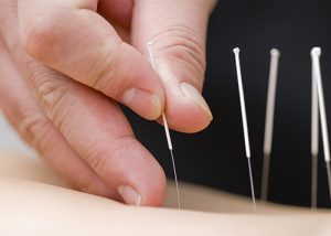 Close up of a practitioner placing acupuncture needles in a body