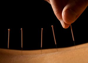Close up of acupuncture needles in the back of a patient