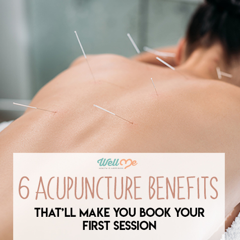 6 Acupuncture Benefits That'll Make You Book Your First Session