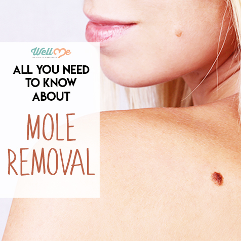 All You Need to Know About Mole Removal