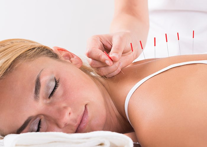Woman with eyes closed receiving acupuncture treatment on her back