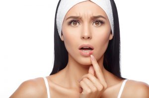 cold sore treatment featured image