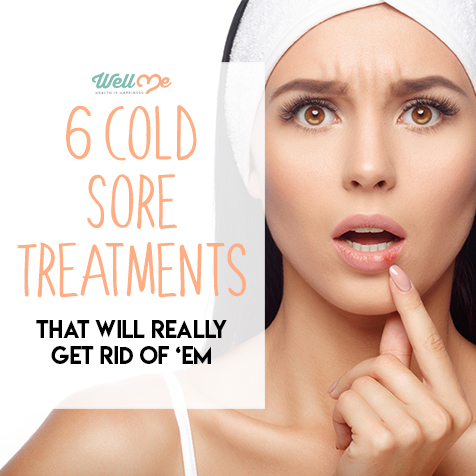 6 Cold Sore Treatments That Will Really Get Rid of 'Em