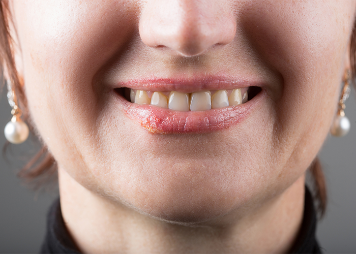 A woman with a cold sore smiling