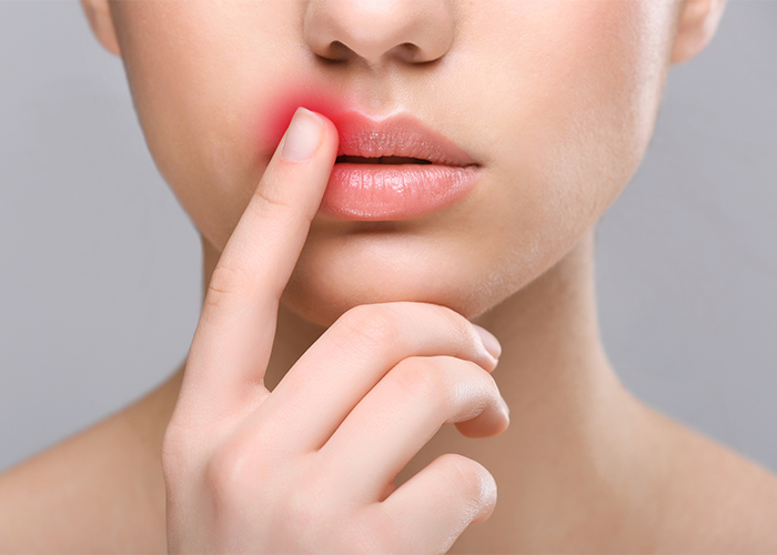 Woman with a cold sore on her mouth touching it with her index finger