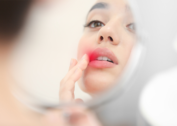 Woman looking into a mirror touching her cold sore