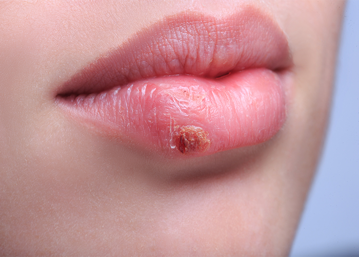 Close up of a woman with a cold sore on her lips