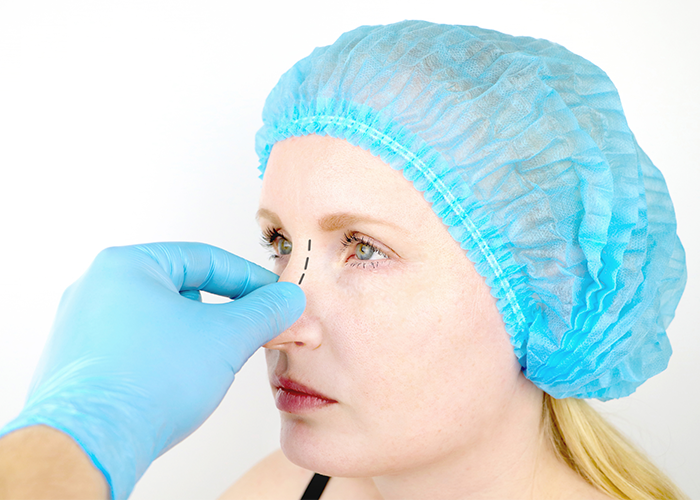 Young woman with blue cap getting prepped for nose surgery to relieve snoring.