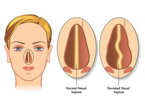 Graphic of a deviated septum vs a normal septum.