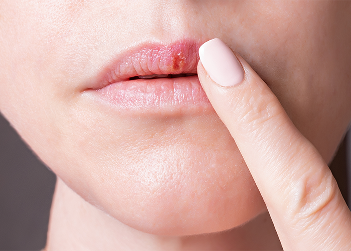 Close up of a woman touching her cold sore on her lips with her finger