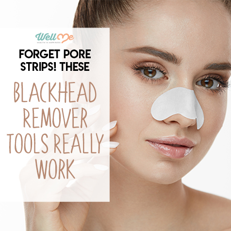 Forget Pore Strips! These Blackhead Remover Tools Really Work
