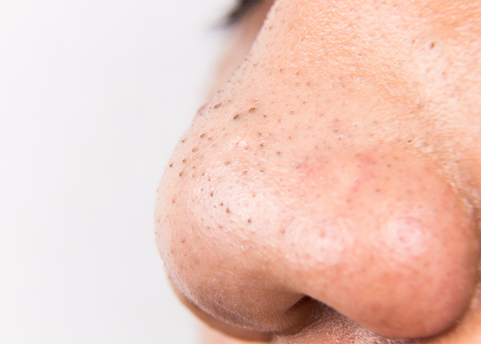 Close up of woman's nose with blackheads