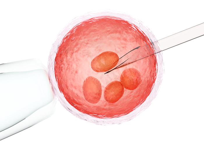 Graphic of the harvesting of egg cells from ovary