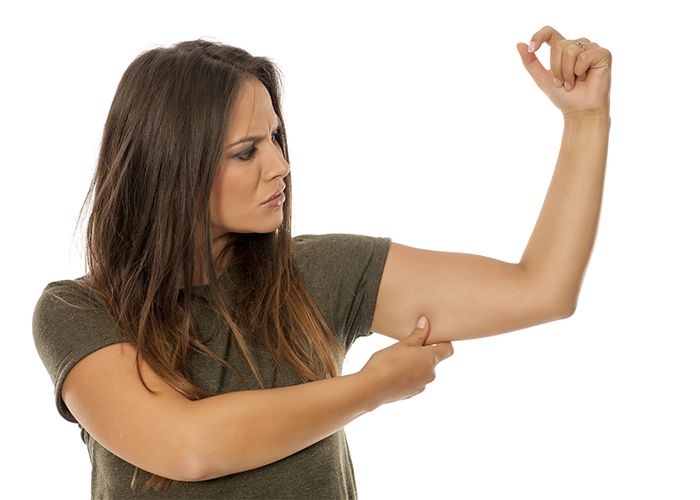 Woman pinching her flabby arms