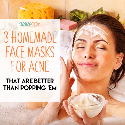 3 Homemade Face Masks For Acne: That Are Better Than Popping 'Em