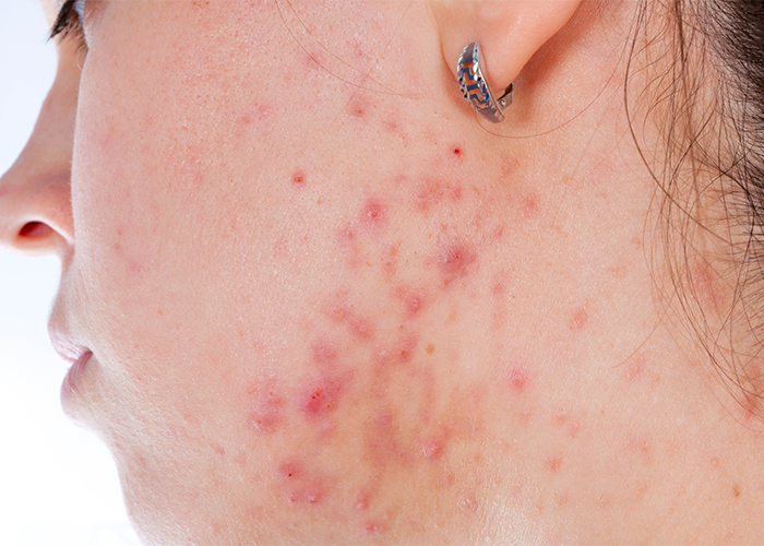 Close up of a woman's profile and neck covered in acne