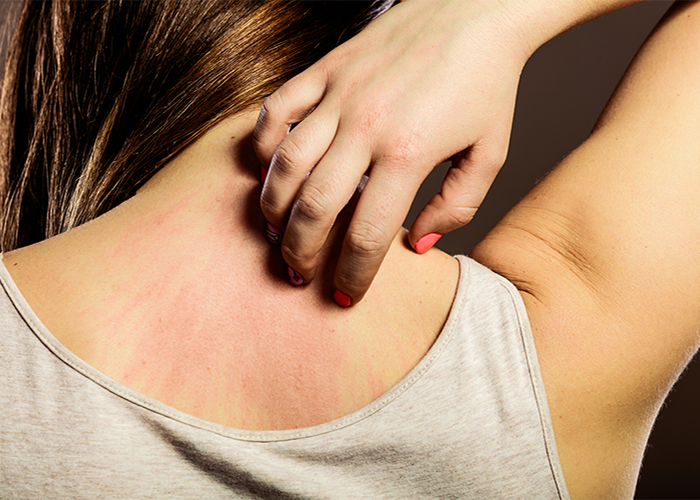 Woman scratching rashes caused by lupus on her back