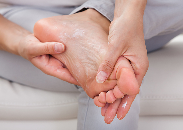 Woman rubbing her foot with manuka essential oil anti-fungal cream