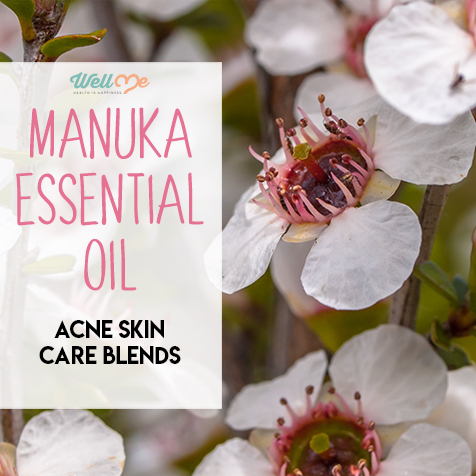 Manuka Essential Oil Acne Skin Care Blends