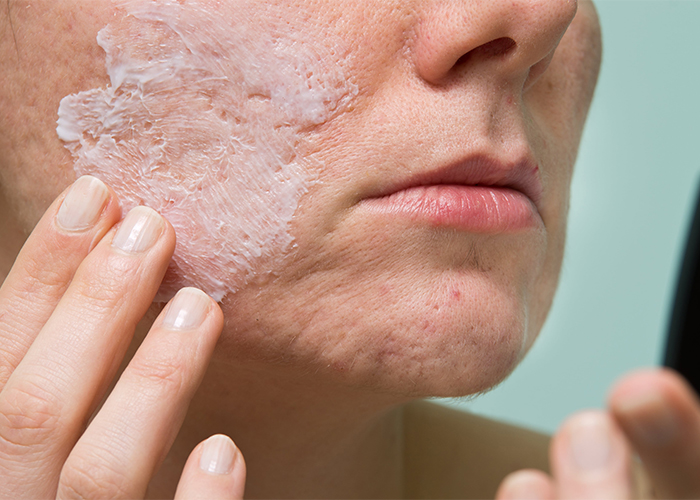 Closeup of woman applying manuka essential oil acne cream for spot treatment to her facial acne.