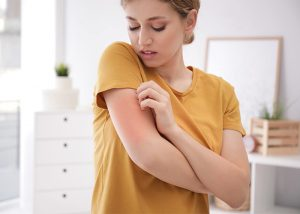 Woman in her house itching a mosquito bite on her arm