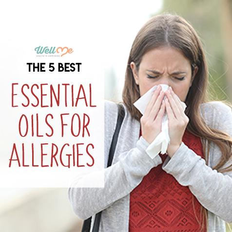 essential-oils-for-allergies-title-card